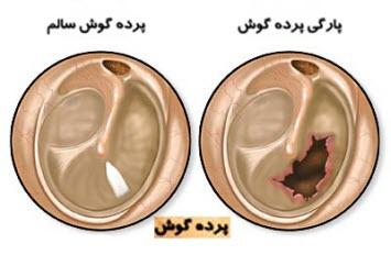 ear-drum